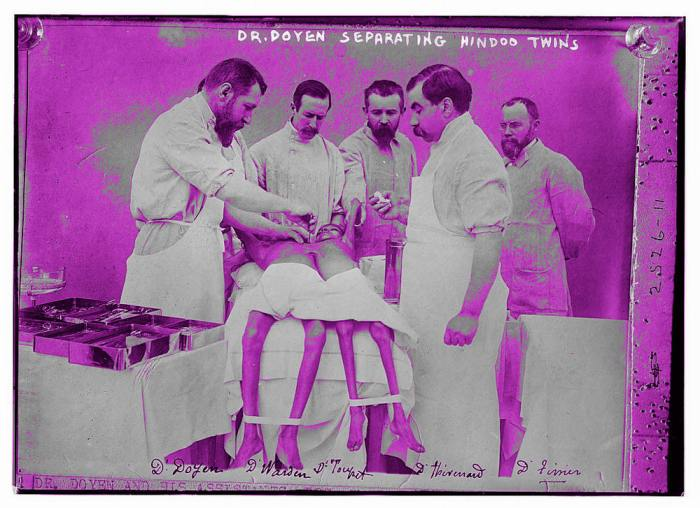 """Dr. Doyen separating Hindoo twins"", ca. 1902 (Source of original photo: Library of Congress)"